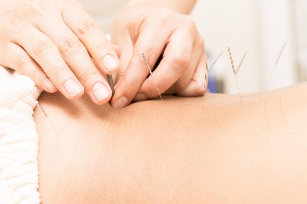 Patient der modtager akupunktur mod rygsmerter og lændesmerter