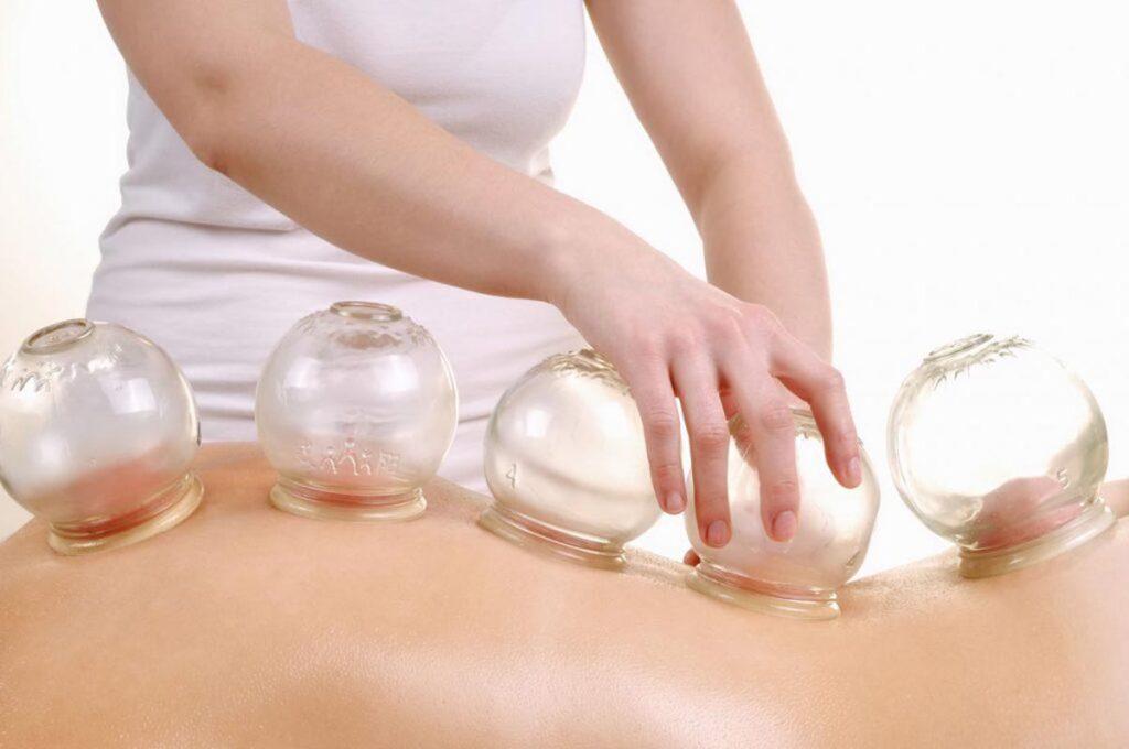 Billede vider akupunktur klinik som benytter vacuum kopper til behandling