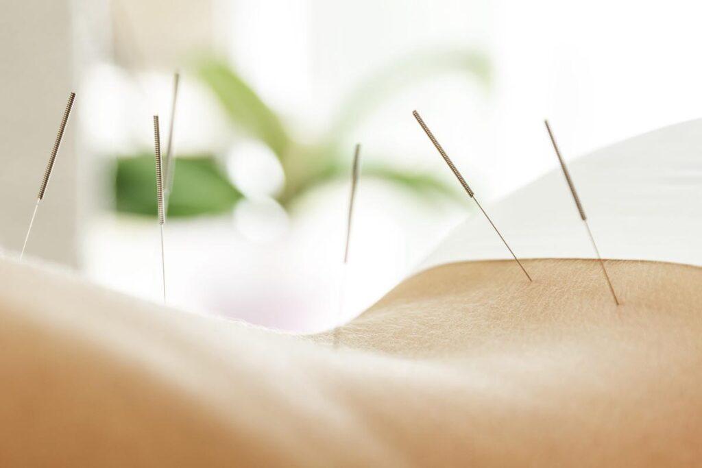 Billede af kvinde som modtager lændesmerter behandling med akupunktur