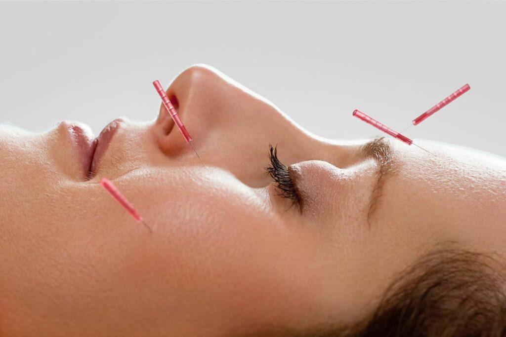 Billede af ung kvinde som modtager pollenallergi behandling med akupunktur