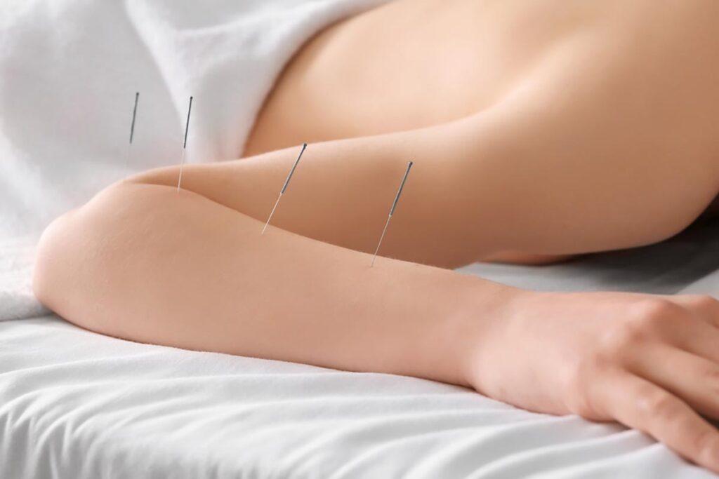 Patient modtager tennisalbue akupunktur behandling