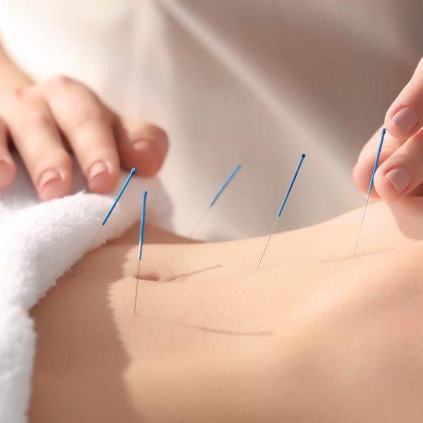 Billeder viser kvinde der modtager barnløshedsbehandling med akupunktur